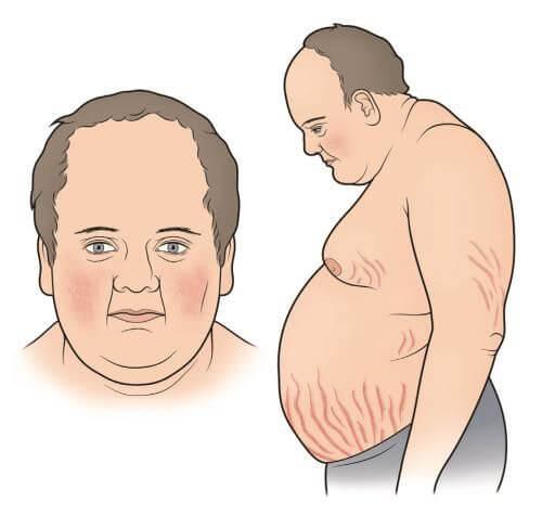 симптомы пивного алкоголизма фото
